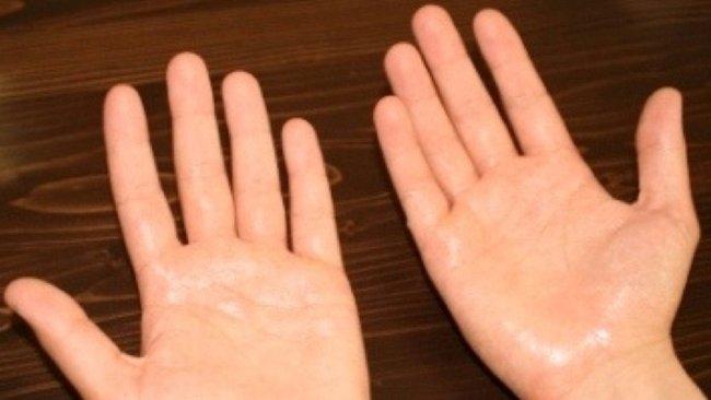 Повышенная потливость рук