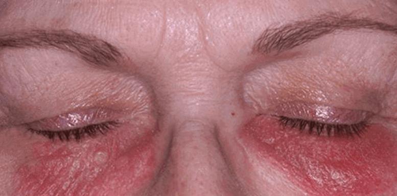 Аллергический дерматит на веках